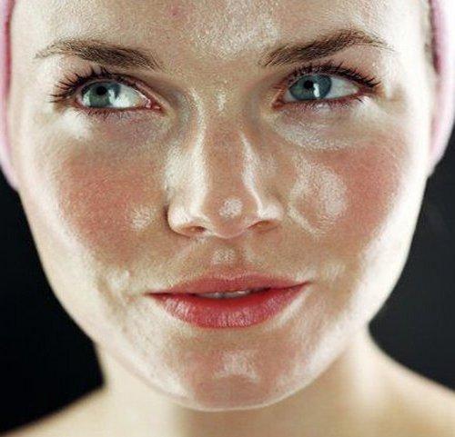 Cara Menghilangkan Jerawat Pada Foto: Cara Mengatasi Minyak Berlebih Pada Wajah